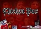 chicken-pox